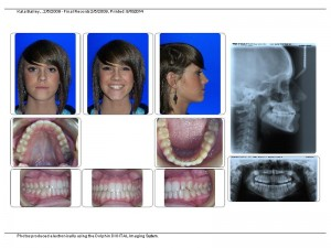 orthodontic record keeping defay
