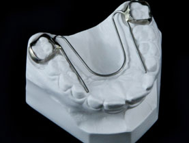 Defay Orthodontics W-appliance