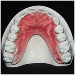 Defay Orthodontics Bite plate