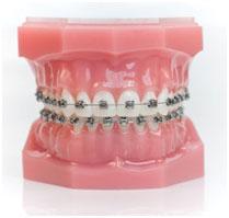 metal braces Defay Othodontics