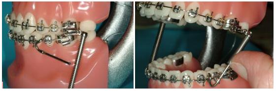 Defay orthodontics forsus