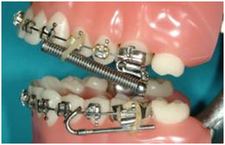 Defay orthodontics forsus 2