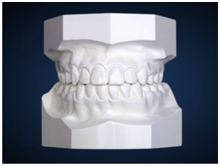 mold of teeth defay orthodintics